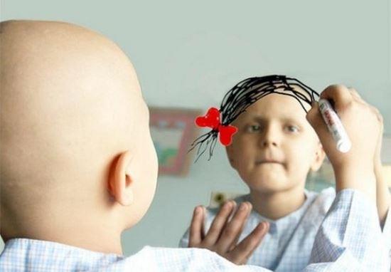 Tác dụng phụ hay gặp của hóa trị là rụng tóc